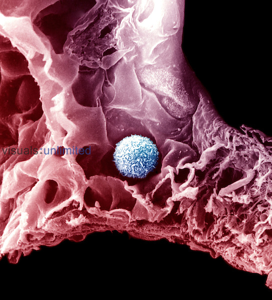 This phagocyte or macrophage is able to ingest small particles that might be inhaled into the lungs. SEM X1630  **On Page Credit Required**