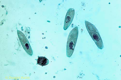 PR01-018x  Protozoa Didinium - eating paramecium - Didinium spp.  100x