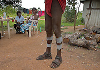Body paint around legs of man getting ready for a Cleansing ceremony on Tiwi Islands.  Body paint seems to be primarily decorative instead of storytelling.  <br /> Culture is more intact because the island is removed from modern western culture.  A cleansing ceremony is the final ceremony in the death of a family member.  A year or so after the funeral the family gets together and paints pukamani poles and places them around the grave.