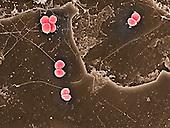 Staphylococcus aureus Bacteria on head hair surface. SEM X10,000