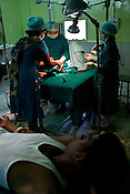 A patient looks on as surgeons conduct corrective surgery to a young woman at the local hospital in Chalisgaon, Maharashtra, India. Rotary Club organises a free medical camp for the poor and needy. India's leading Micro and plastic surgeons visit the medical camp and provide free medical service.