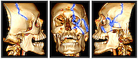 3D CT scan reconstruction showing fractures of the left side of the face and skull of a 24 year old man