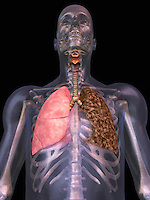 Biomedical illustration of the human lungs showing a normal right lung and the effect of smoking on the left lung