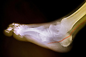 Colorized x-ray of  the foot of a person with diabetes who has a calcified artery.