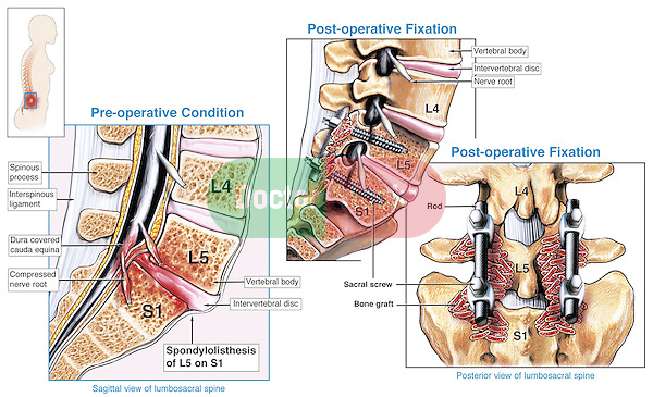 spondylothesis pain symptoms Ankylosing spondylitis is a type of arthritis that affects the spine ankylosing spondylitis symptoms include pain and stiffness from the neck down to the lower back the spine's bones (vertebrae) fuse together, resulting in a rigid spine.