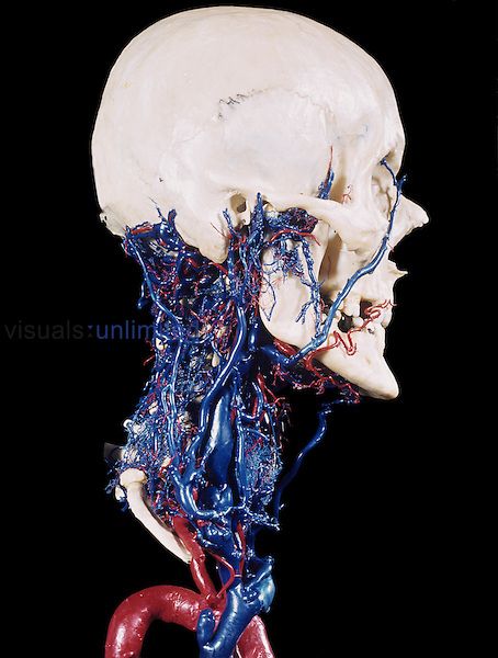 Resin cast of the human head and neck with bones intact and the associated blood vessels.