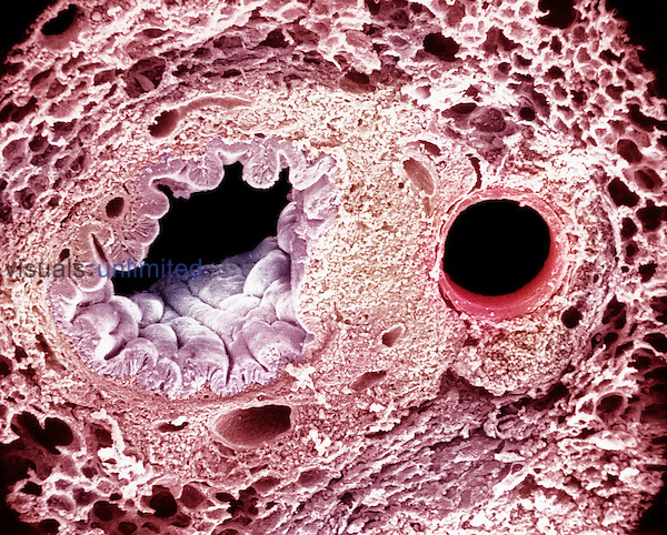 "Lung section showing a bronchus pulmonary artery (red), and many alveoli. SEM X240 (based on 4.75""x6/75"") **On Page Credit Required**"