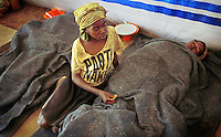 "Angolans who are suffering from severe malnutrition are treated in Kuito, Angola. The irony of the t-shirt ""Party Naked"" is lost in a brutal 26 year-civil which has displaced around two million people..(Photo by Ami Vitale)"