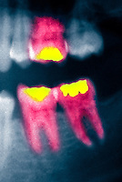 Colorized x-ray showing three molar teeth with dental fillings
