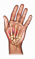 Biomedical illustration of a hand with a third metacarpal fracture