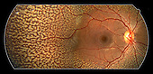 Albipunctus eye retina (albipunctatus) or flecked retina syndrome, characterized by discrete, white dots at the level of the retinal pigment epithelium and stable night blindness. This patient is the only known Australian aboriginal with albipuctatus.