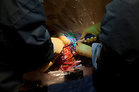 San Francisco, California, January 6, 2011 - University of California San Francisco neurosurgeon Dr. Philip Starr (left) and clinical fellow Dr. Ellen Air attach two SurgiVision SmartFrame(TM) bases to the skull of patient Linda Sharp during an iMRI surgery at University of California San Francisco Medical Center while. The SmartFrame(TM) Devices are used as guides to insert the electrodes into the desired point of the brain. By using real time MRI scans of the brain, the surgeon can find the optimal trajectory for the electrodes ensuring the safest path while also precisely locating the precise point...The MRI machine photographs the patient during the surgery allowing the doctors operating to view the procedure as well as support doctors and technicians to monitor from an outside room.  The iMRI procedure uses Deep brain stimulation (DBS), which has been used for over a decade to treat movement disorders such as Parkinson's disease, essential tremor, and dystonia. DBS uses a pulse generator implanted in the chest, similar to a pacemaker, to deliver pulses to specific regions of the brain via a permanently implanted electrode. In the U.S., DBS is normally done while the patient is awake, because the surgeon needs to induce the symptoms (like the involuntary movements of Parkinson's) to know if he's in the right place, and if the patient is unconscious, the symptoms can't be induced. Many patients find it hard to tolerate. Their head is clamped in a frame, they're aware of their surroundings, and the surgeon is deliberately producing tremors and twitches while they lie there...Interventional MRI (or iMRI) allows surgeons to implant these electrodes while the patient is unconscious taking advantage of MR imaging in real time by performing procedures inside the scanner itself.
