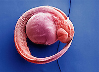 Zebrafish embryo. SEM X100  **On Page Credit Required**