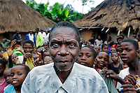 An elderly villager with a cataract in his right eye. Doctor Richard Hardi and his medical medical team have come to the remote village of Pania to perform eye surgery. <br /> <br /> From his base in Mbuji Mayi Hungarian ophthalmologist Friar Richard Hardi and his team travelled deep into the Congolese rainforest, by 4x4 and canoe, to treat people in isolated communities most of whom have never seen an ophthalmologist. At a small village called Pania they established a temporary field hospital and over the next three days made hundreds of consultations. Although both conditions are preventable, many of the patients they saw had Glaucoma or River Blindness (onchocerciasis) that had permanently damaged their eyesight. However, patients with cataracts, a clouding of the eye's lens, who were suitable for treatment were booked for an operation. For two days the team carried out the ten minute procedure on one patient after another. The surgery involves making a 2.2mm incision into the remove the damaged lens that is then replaced by an artificial one. Doctor Hardi is one of the few people willing to make such a journey but is inspired to do so by his faith and, as he says: 'Here I feel that I can really make a difference in people's lives'. /Felix Features