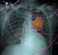 Chest x-ray of a 53 year old man with a pacemaker and pulmonary edema