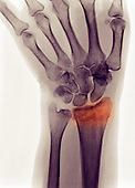 X-ray of a distal radius fracture in a 54 year old woman who fell