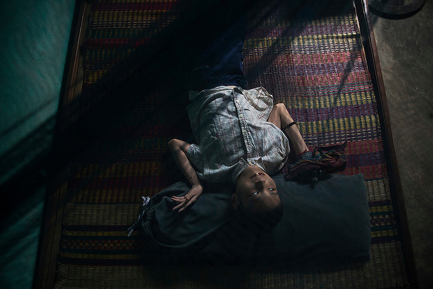 Le Dang Ngoc Hung, a 16 year old boy suffering from different mental and physical problems rests under mosquito net in the family house in Phuoc Thai village, outside Danang April 12, 2015. Le Dang Ngoc Hung's grandfather Le Van Dan, a former artillery soldier for the South Vietnamese army said he was exposed to the Agent Orange more than once, including being directly sprayed from the U.S. planes near his village before he joined the military. Health officials confirmed two of his grandsons are born handicapped due to his exposure to the toxic chemical defoliant Agent Orange, Le Van Dan said. Being a former soldier of the South Vietnamese army, Le Van Dan receives only a part of compensation compared to what North Vietnamese veterans get, he added.  REUTERS/Damir Sagolj