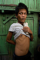 Celedinio Pindengi who sold his kidney to the Filipina wife of a Brazilian for 90,000 pesos.  In the Basico area more than 3000 have sold their kidneys mostly to foreigners.<br /><br /><br />PHOTO BY RICHARD JONES