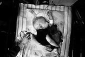 Wroclaw 02.02.2007 Poland<br /> Szymon Kaczmarek, 2, died two days after on cancer.<br /> Clinical Hospital, oncology and haematology departmend. This is one of the important Haematologic Hospital in all over Poland, however hospital board stopped to discharge a rising debt. In this connection authorities must close hospital, but goverment had no idea what should do with terminaly ill children.<br /> (Photo: Adam Lach / Napo Images)<br /> <br /> Szymon Kaczmarek (2). Szymon zmarl dwa dni pozniej.Szymon cierpial na rzadka rozsiana postac nowotworu Histiocytoza X z komorek Cengensona.<br /> Akedemicki Szpital Kliniczny, oddzial onkologii i hematologii. Temu jednemu z najwazniejszych w Polsce osrodkowi szpitalnemu grozi zamkniecie w powodu dlugow, ktore niezaleznie od wplat NFZ-tu regularnie sciaga komornik. Z calej Polski ludzie charytatywnie wplacaja pieniadze by uratowac szpital i los dzieci dla ktorych to miejsce jest jedynym ratunkiem.