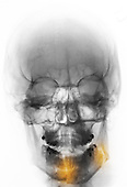 Colorized skull x-ray showing mandible fractures in a 28 year old man who was punched in the jaw