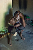 "N. Uganda, Gulu District. ""Patrick, "" a PCAF patient is drunk at mid-day. He is one of many alcohol & drug abusers among the male survivors of war. Patrick cried as he showed photos of his brother killed by rebels, another who committed suicide and describes being held captive during wartime. He drinks to sleep and escape, but his violent temper takes over often threatening to kill the two wives he lives with. They hide the machetes in the thatched roof."