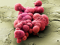 Cluster of pancreatic cancer cells. SEM X750 at 4 x 5 inches