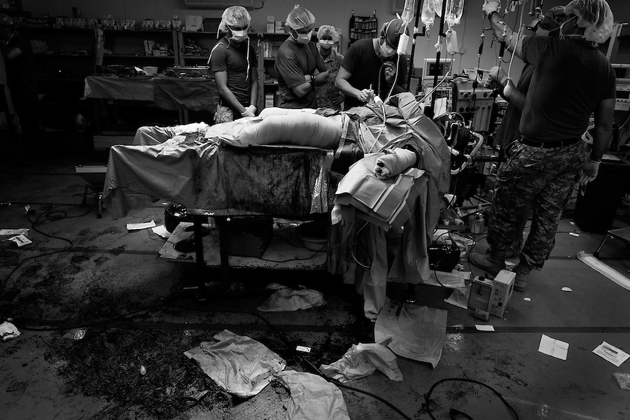 The aftermath of a double amputation operation on a Marine whose legs were shattered by an IED strike in Ramadi, Iraq on Sun. Oct. 22, 2006.<br />