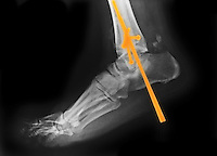 Colorized x-ray showing the surgical repair of an ankle fracture in a 61 year old man