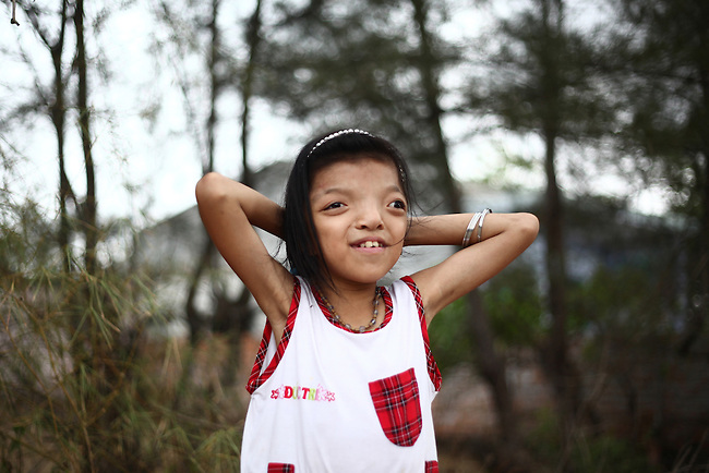 "Nguyen Thi Ly, 11, pauses while skipping rope in her village south of Da Nang, Vietnam. She is a third generation victim of dioxin exposure, the result of the U.S. military's use of Agent Orange and other herbicides during the Vietnam War more than 40 years ago. She suffers from facial deformities and chronic bone pain, but is otherwise a normal little girl with hopes and dreams for the future. ""I want to be a teacher in a primary school,"" she says, shyly. ""She's very good at mathematics and literature,"" adds her mother, Le Thi Thu, 42, who suffers from the same afflictions. ""She's very hard-working and industrious."" The Vietnam Red Cross estimates that 3 million Vietnamese suffer from illnesses related to dioxin exposure, including at least 150,000 people born with severe birth defects since the end of the war. The U.S. government is paying to clean up dioxin-contaminated soil at the Da Nang airport, which served as a major U.S. base during the conflict. But the U.S. government still denies that dioxin is to blame for widespread health problems in Vietnam and has never provided any money specifically to help the country's Agent Orange victims. May 28, 2012."