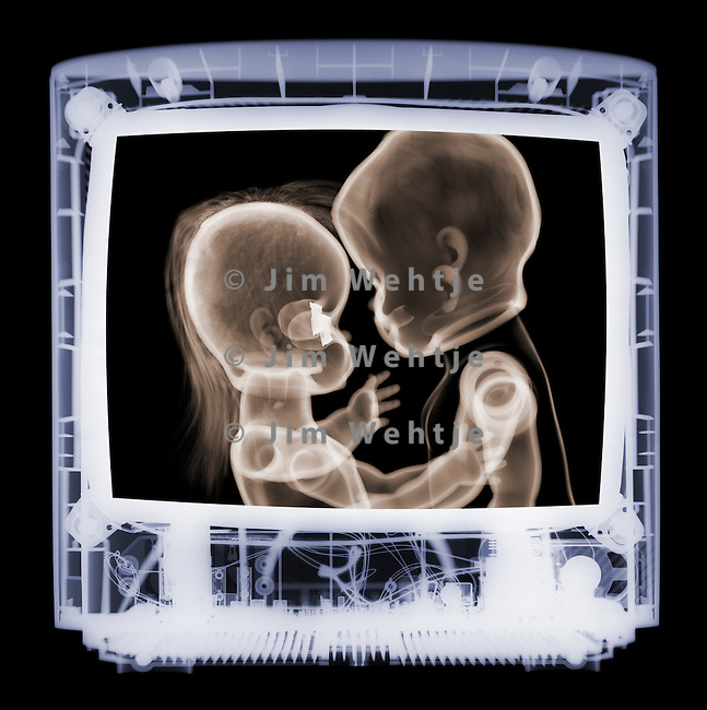 X-ray image of a couple kissing on screen (color on black) by Jim Wehtje, specialist in x-ray art and design images.