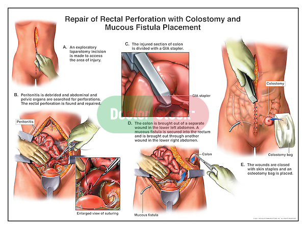 Colon Bladder Fistula Surgery http://doctorstock.photoshelter.com/image/I0000rJFwDo_Sdi4