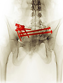 Colorized x-ray of the pelvis of a 21 year old woman involved in a motor vehicle accident, showing the repair of a hip fracture with multiple screws and plates