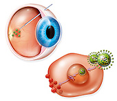 Biomedical illustration of treatment for macular degeneration AMD using gene therapy. A gene that produces an anti-AMD medicine is injected into a deactivated virus which cannot spread in the cells of the retina. The virus is injected into the eye with a ratio of one virus per cell treated. <br />