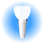 Dental implant vector illustration isolated on white blue background