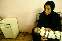 Basra gynecological and pediatric hospital, Iraq, Feb 5, 2003.Abbas, 2 months suffers from accute pneumonia, a condition most likely caused by severe malnutrition as indicated by his sunken eyes and pale color.