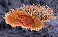 Freeze fractured squamous cell carcinoma (human), a type of skin cancer. SEM