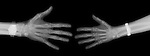 X-ray image of male and female hands (white on black) by Jim Wehtje, specialist in x-ray art and design images.