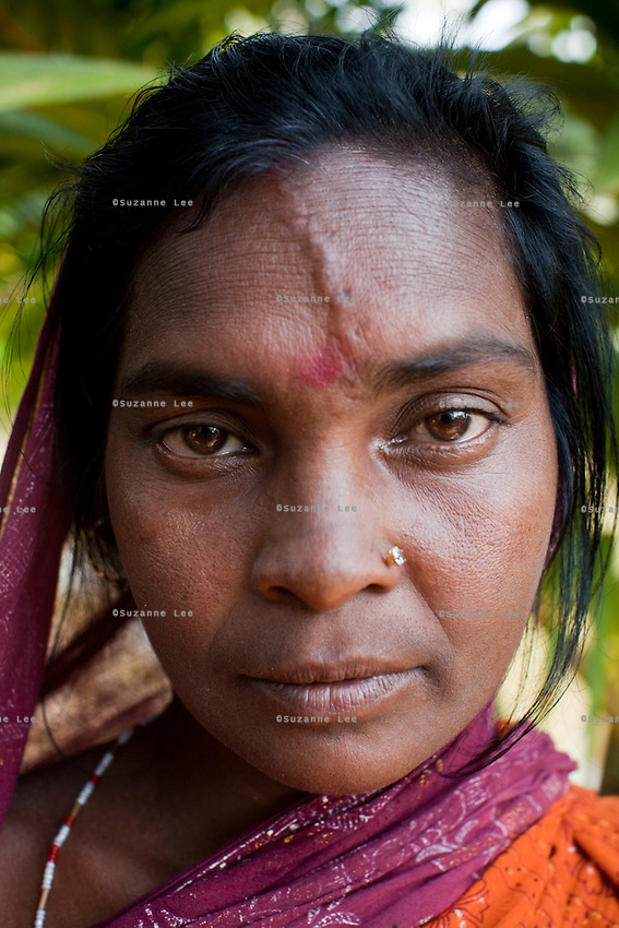 Tiger attack survivor Tarubala Mandol, 30, stands for a portrait at her home on Gosaba island, Sundarban, West Bengal, India, on 18th January, 2012. 1.5 years ago, she was pounced on by a waiting tiger outside her home. She survived as the tiger was chased away and tranquilized when it hid in the forest goddess Bono Debi/Bono Bibi temple nearby. Tigers have been known to swim, sometimes underwater, to the village to hunt humans. A successful Royal Bengal tiger breeding program has increased their numbers but decreased the number of husbands. There are now an estimated 3,000 widows in the villages where their husbands, have been killed by tigers. Photo by Suzanne Lee for The National (online byline: Photo by Szu for The National)