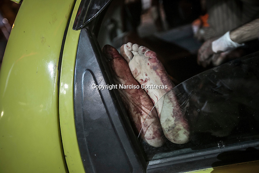 The feet of a Syrian child are seen through a car window as he arrives at the hospital to get medical treatment after being injured by aircraft shelling carried out by Assad'a army over a residential neighborhood of Aleppo City. The Hospital located at the northeast area of the City was targeted four times by aircraft shelling, depite the bombing the Hospital still operating and giving medical care to the civilian population..
