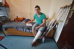 Rasheed Shervan, a Syrian refugee, sits on his bed in the Krnjaca Center for Refugees on the outskirts of Belgrade, Serbia. A chemist, he fled his home in Aleppo, Syria, when bombing destroyed his home. He then spent three years in a refugee camp in Izmir, Turkey, but fled after participating in a protest about the conditions in which refugees are forced to live. On his way to western Europe, he injured his leg when jumping from a train in Belgrade.