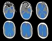 Colorized CT scan images of a 67 year old man with severe hydrocephalus