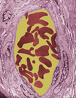 Cross section through an artery, TEM