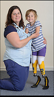 BNPS.co.uk (01202 558833)<br /> Pic: RachelAdams/BNPS<br /> <br /> Charlotte Nott (5) with mum Jenny Daniels<br /> <br /> Determined Charlotte Nott has battled back from the brink of death in hospital three years ago to run for the first time on a new pair of prosthetic blades. Charlotte (5), from Oxford, lost all four limb to meningitis, and since then she has used rigid prosthetic legs which enable her to walk but has never been able to run around with her friends or younger brother. But she has now been donated custom made &pound;3,500 blade legs from specialists Dorset Orthopaedic in Ringwood, Dorset.