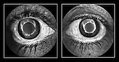 Proliferative diabetic retinopathy fluorescein angiograms of leaking vessels within the iris.