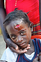 Devastation after the January 12,  2010 earthquake. Wounded girl in makeshift American health clinic.