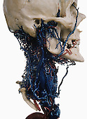 Human skull with a colored resin cast of the arteries (red) and veins (blue) in the neck. The veins in the neck drain deoxygenated blood away from the brain. The largest vein visible is the jugular vein.