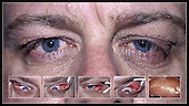 Floppy eyelid syndrome, showing the floppy, rubbery, and easily everted upper eyelids.