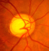 Glaucoma with a deep optic disc, narrow rim, and vertical cup. The disc ratio is 0.8.