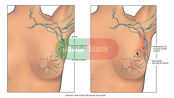 Shows two illustrations of the left breast: one during early stage cancer and one at an advanced stage of cancer metastasis (metastatic). The image on the left shows the location of a primary lesion in the breast tissue along with the associated lymph nodes in the breast and axilla (arm pit). On the right, the axillary lymph nodes are shown with a metastatic lesion after some time has passed.