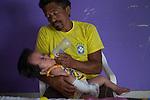2015-03-03. UN &Aacute;NGEL CON LAS ALAS PEGADAS. &copy; Calamar2/Susana HIDALGO &amp; Pedro ARMESTRE<br /> <br />   &Aacute;ngel C&eacute;sar Alonso, de 10 meses, naci&oacute; por ces&aacute;rea en Chiclayo (Per&uacute;) y los m&eacute;dicos le diagnosticaron s&iacute;ndrome de Apert, una enfermedad gen&eacute;tica que afecta a la forma de la cabeza y que hace que el peque&ntilde;o tenga los ojos abultados y padezca sindactilia (los dedos de las manos y de los pies pegados). El s&iacute;ndrome de Apert es una de las 7.000 enfermedades raras que existen en el mundo y su prevalencia oscila entre 1 y 6 casos por cada 100.000 nacimientos. La historia de este beb&eacute; es la historia de unos padres coraje, C&eacute;sar Cruz y Edita Jim&eacute;nez, que se desviven para que el peque&ntilde;o pueda tener la mejor calidad de vida posible. C&eacute;sar y Edita acudieron el pasado mes de marzo junto a su beb&eacute; al hospital San Juan de Dios, en Chiclayo, al reclamo de una campa&ntilde;a solidaria de intervenciones quir&uacute;rgicas organizadas por la Sociedad Espa&ntilde;ola de Cirug&iacute;a Pl&aacute;stica, Reparadora y Est&eacute;tica (Secpre) y la ONG Juan Ciudad. Los cirujanos espa&ntilde;oles le operaron las manos para separar unos dedos de otros. La intervenci&oacute;n dur&oacute; aproximadamente una hora y media y el peque&ntilde;o necesit&oacute; de curas posteriores.<br /> La operaci&oacute;n fue el primer paso en la mejora de la salud de &Aacute;ngel. Necesitar&aacute; al menos otra m&aacute;s para separar los dedos de los pies. Sus padres son humildes y apenas tienen recursos.  C&eacute;sar, el padre, trabaja levantando casas de adobe. Edita, la madre, vive para su hijo y le gustar&iacute;a en un futuro retomar su profesi&oacute;n de enfermera. &copy; Calamar2/Pedro ARMESTRE<br /> <br />  AN ANGEL WITH THE WINGS ATTACHED. &copy; Calamar2/Susana HIDALGO &amp; Pedro ARMESTRE<br /> <br /> Angel C&eacute;sar Alonso was born in Chiclayo (Peru) and was diagnosed 